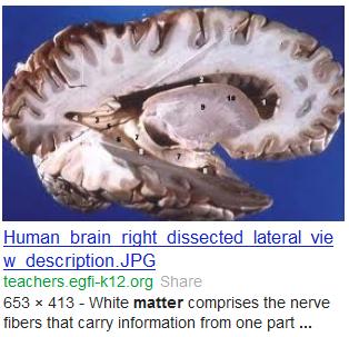 human brain white gray matter